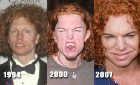 did Carrot Top get plastic surgery?