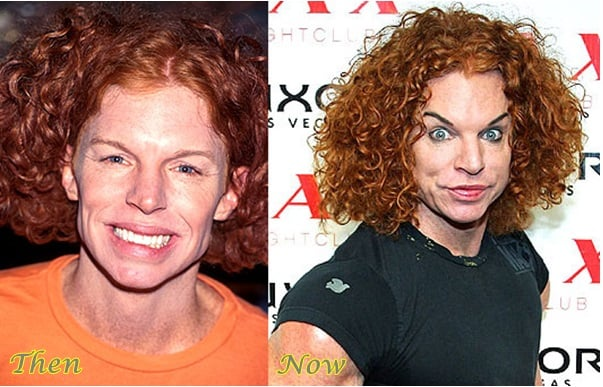 what happened to Carrot Top's face?